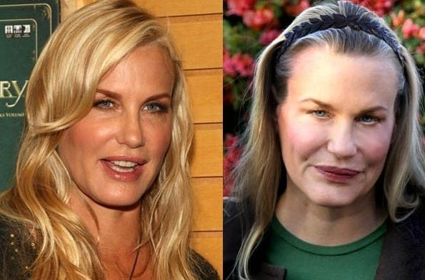 Daryl-Hannah-before-and-after-plastic-surgery-01.jpg
